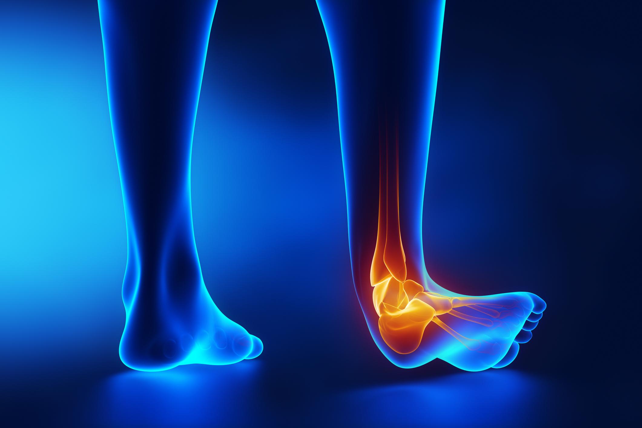 corset artroza genunchiului