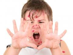 Erupţiile Febrile Scarlatina Rujeola Rubeola Eritemul Infecţios