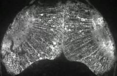 Experiment INCREDIBIL, filmat în premieră: Cum se formează gândurile în creier (VIDEO)