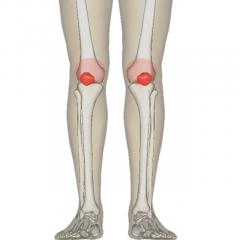 Lombare hernia spinala fara examinari chirurgicale