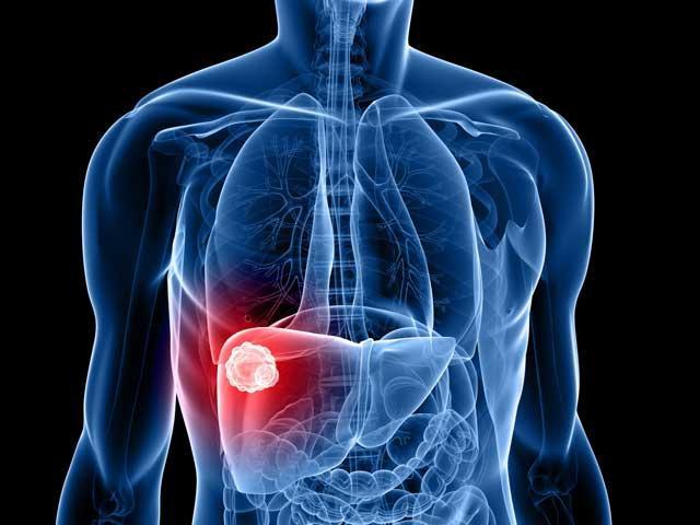 Puterea de exercitii de la dureri de spate mai mici