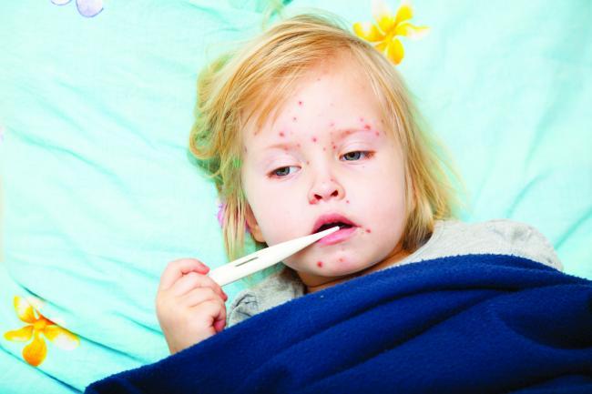 Sfatul Medicului Cum Se Tratează Rujeola La Copiii Mici