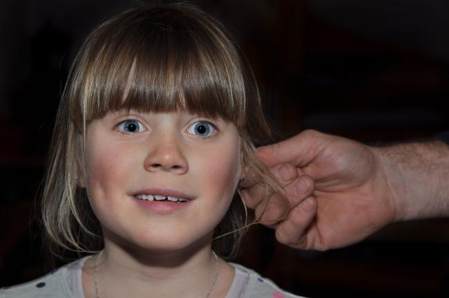 Cum scapi uÈ™or de ceara din urechi