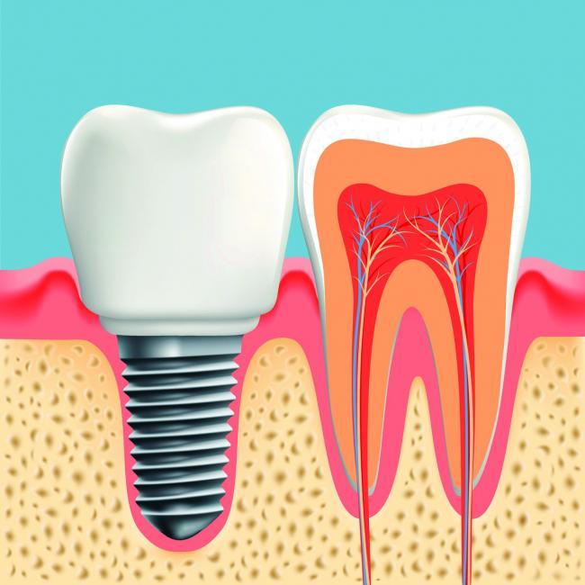 Implantul dentar implica multe vizite la medic si o igiena bucala ireprosabila