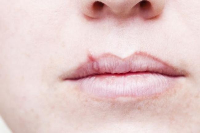 Herpesul oral. Ce il activeaza È™i cum il tratam fara medicamente