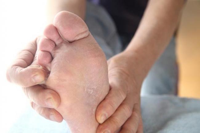 Ciuperca piciorului. Crema facuta in casa care va scapa de aceasta problema pentru totdeauna!