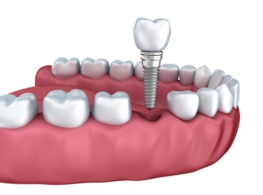 (P) Cele mai frecvente riscuri postoperatorii ale implantului dentar