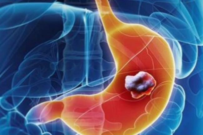 ALIMENTUL nebanuit care poate INCETINI dezvoltarea CANCERULUI DE STOMAC