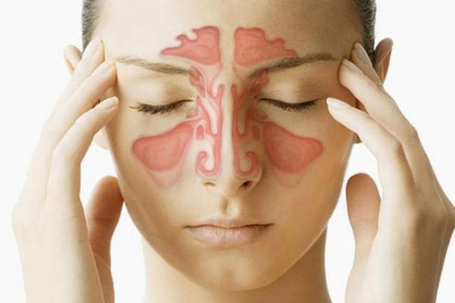 Tot ce trebuie sa È™tii despre SINUZITÄ': Cauze, simptome È™i TRATAMENT