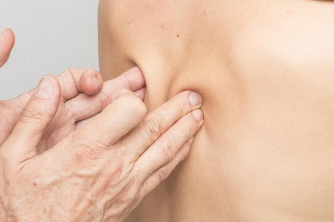 Legatura dintre durerile de spate È™i infecÈ›iile urinare