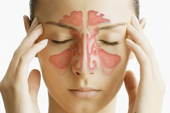 3 remedii naturale eficiente in combaterea sinuzitei