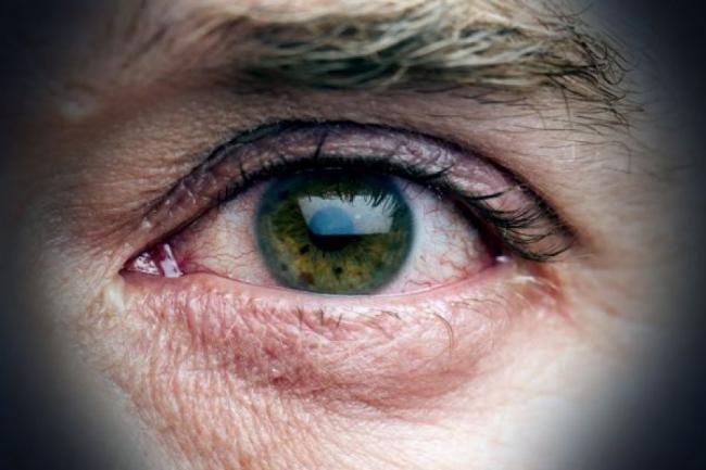 Cum se poate trata boala care te face sp plangi cu lacrimi de sangele