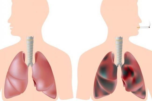 Tratamente naturiste. Elixirul pentru fumatori! Remediu natural pentru curaÈ›area plamanilor