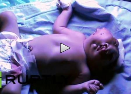 Copil cu două feţe, născut în India. Doctorii sunt ULUIŢI (VIDEO)