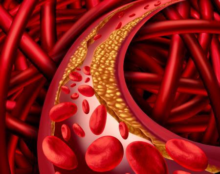 Trei ingrediente NATURALE pentru curățarea arterelor coronare
