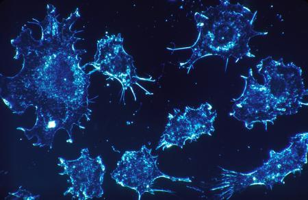 Soluție unică în lupta împotriva CANCERULUI. Rezultatele sunt ULUITOARE