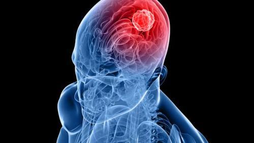 Tumorile cerebrale | 24oradea.ro