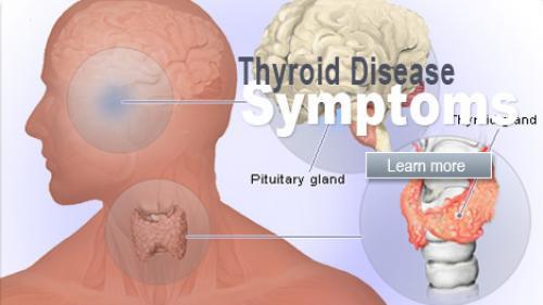 nu pot slabi din cauza tiroidei