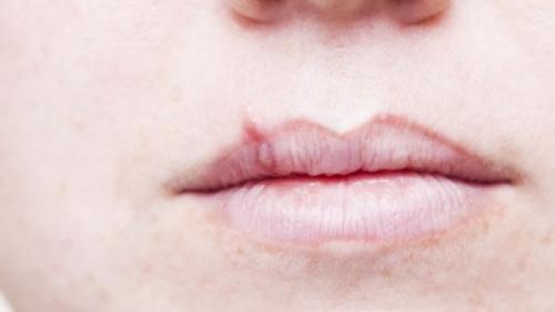 Herpesul oral. Ce îl activează și cum îl tratăm fără medicamente
