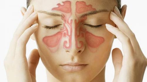 Tot ce trebuie să știi despre SINUZITĂ: Cauze, simptome și TRATAMENT
