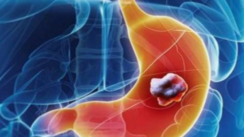 Tratamente naturiste. LEACUL-miracol pentru CANCER stă ascuns în butoi