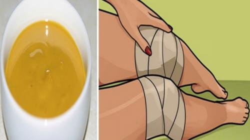 Tratamente naturiste. Remediul care te va face să uiți de durerile articulare!