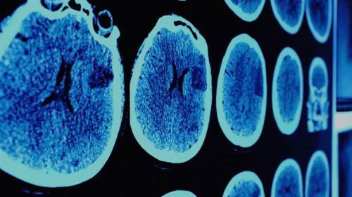 Descoperire uimitoare a cercetătorilor în lupta împotriva cancerului!