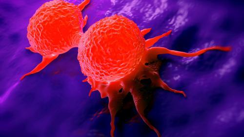 pierderea în greutate după îndepărtarea tumorii ovariene