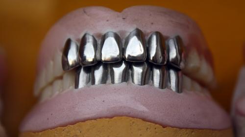 România știrbă: peste un sfert din populație nu mai are niciun dinte în gură