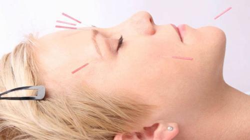 Sfatul medicului. Totul despre LIFTING FACIAL prin acupunctură și fitoterapie