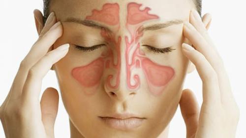 Tratamente naturiste. 3 remedii naturale eficiente în combaterea sinuzitei