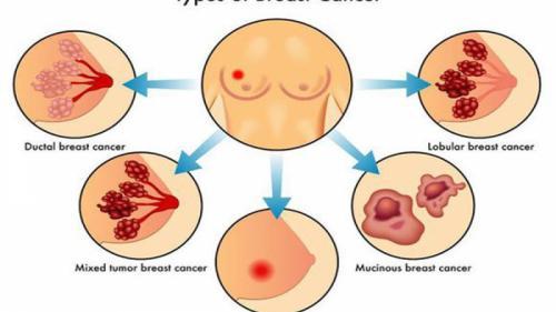 Răspândirea cancerului de sân în alte organe poate fi stopată. Ce spun specialiștii