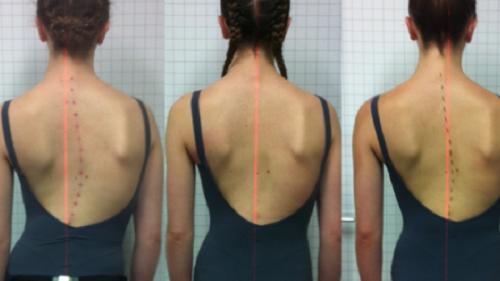 Unguent pentru dureri articulare ?i dureri musculare pentru persoanele in varsta
