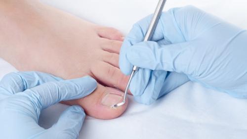 Ai fost diagnosticat cu diabet? Iată care sunt semnalele de alarmă trimise de piciorul tău