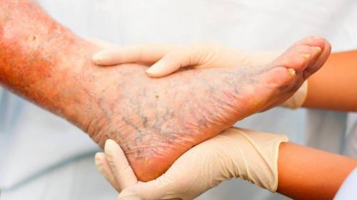 PICIORUL DIABETIC și tratamentul lui. Ce să faci ca să elimini RISCURILE AMPUTĂRII