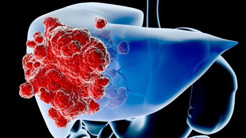 Afecţiunile hepatice, de la diagnosticare la stadiul final