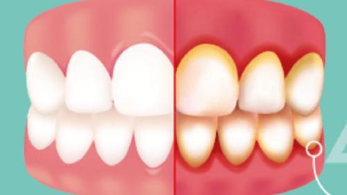 Gingivita – cea mai neglijată problemă dentară cu consecinţe grave - cum o prevenim, cum o tratăm?