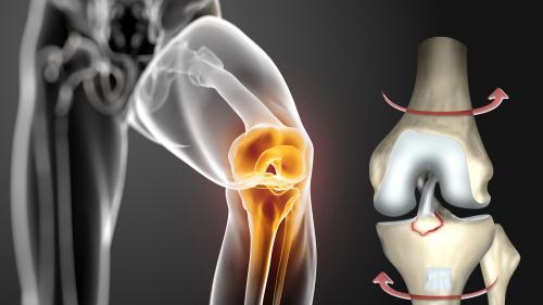 Leziunea de ligament încrucișat anterior – cum o tratăm (VIDEO)