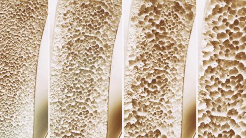 Sfatul medicului OSTEOPOROZA – ce trebuie să știi