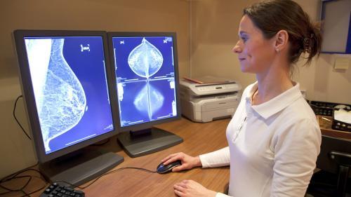 10.000 de românce depistate cu cancer de sân, în 2018