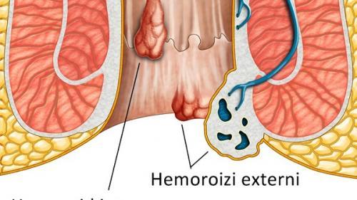 Tot ce trebuie să știi despre hemoroizi. Diagnostic, cauză, tratament