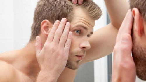 Remedii naturale împotriva căderii părului