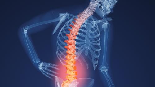 Lupta cu osteoporoza începe în adolescenţă