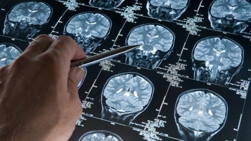 Tumorile cerebrale – tot ce trebuie să știi despre ele