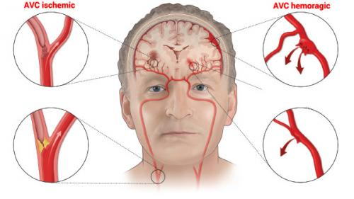 Accident vascular cerebral (AVC) – Simptome, tratament și recuperare
