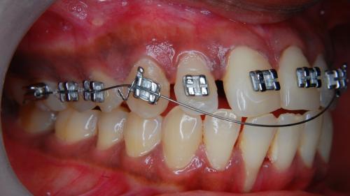 Aparatul dentar la copii: necesitate sau modă?