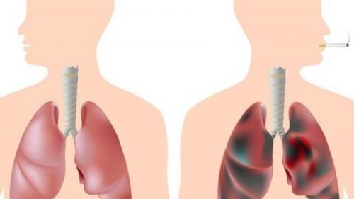 Tuberculoza la copii – tot ce trebuie să știm