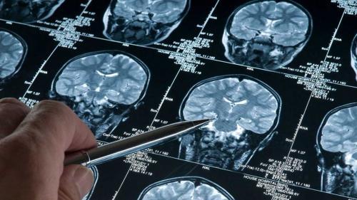 Traumatismul cranian la copii și adolescenți poate crește riscul de comportament infracțional, în viitor