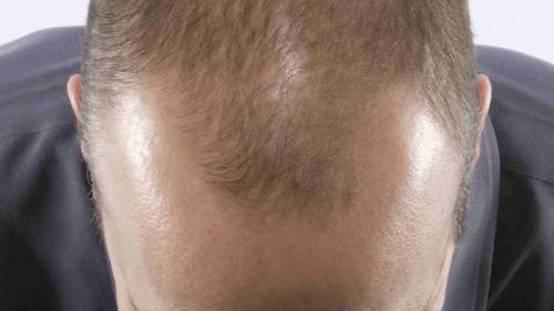 Căderea părului are leac! Ce recomandă prof. dr. farm. Ovidiu Bojor?