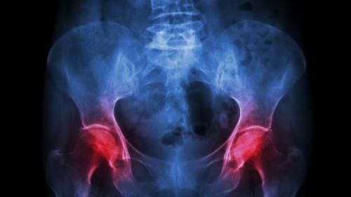 Artrozele șoldului – tratament și recuperare